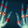 """Artróza, jinak také osteoartróza, je degenerativní onemocnění kloubů, laiky často označováno jako """"revma"""". Patří mezi nejčastější kloubní onemocnění postihující vpodstatě všechny klouby lidského těla, omezuje pohyblivost a může vést až […]"""